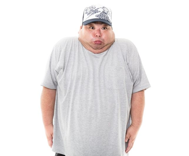 肥満いびき改善太っているとイビキかきやすい?